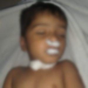 Bhopal Child Mishap Death